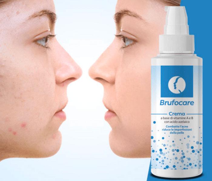 brufocare crema acne